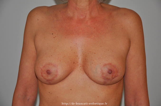 Cure de ptôse mammaire avec prothèses mammaire