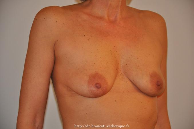 Avant cure de ptôse + Prothèses mammaire