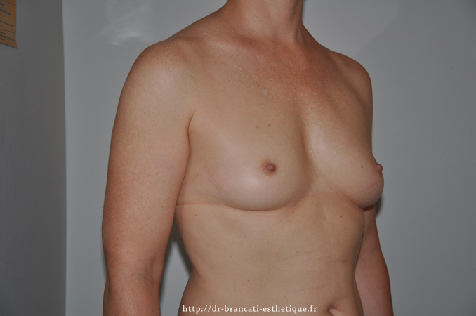 Avant pose de prothèse mammaire