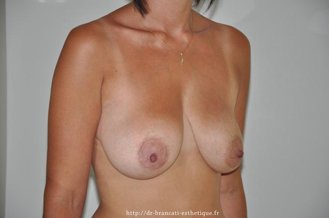 Avant ptose mammaire