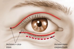 chirurgie-esthétique des paupières - blépharoplastie