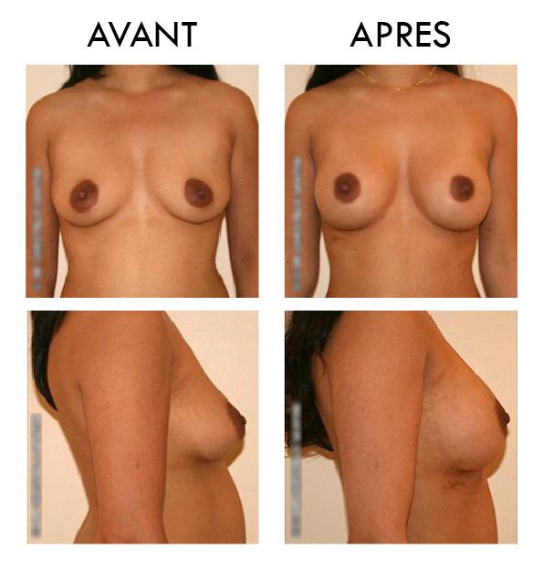 Avant-après : Augmentation des seins