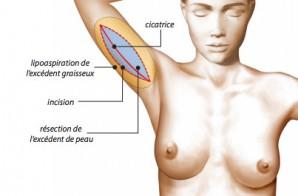 Lifting de la face interne du bras