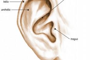 Otoplastie : chirurgie-des-oreilles-decollees