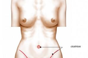 chirurgie plastique et esthetique de la paroi abdominale