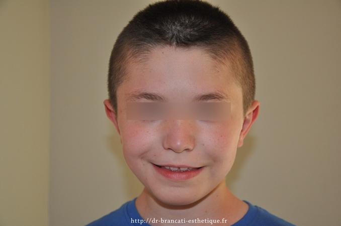 Après otoplastie - oreilles décollées
