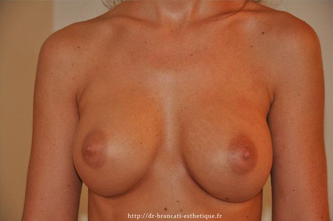 Après pose de prothèses mammaire