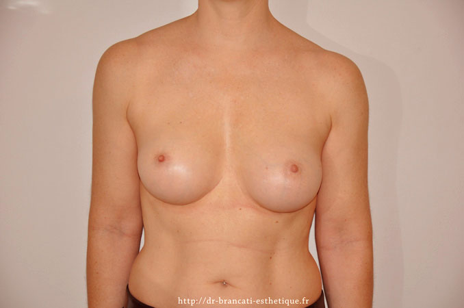 Après pose de prothèse mammaire