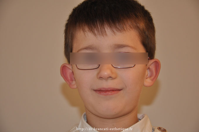 Avant otoplastie - oreilles décollées