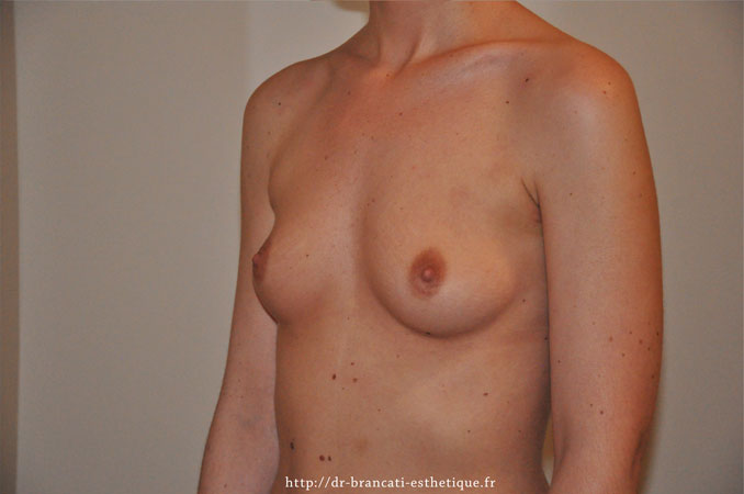 Avant prothèse mammaire