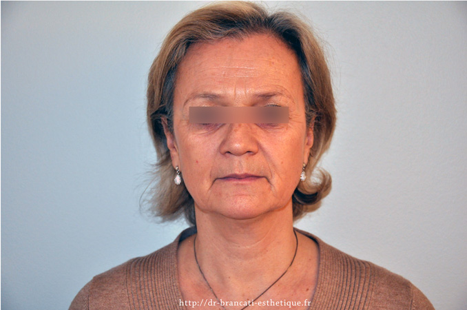 Lifting facial - avant intervention-chirurgicale