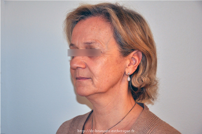 Lifting facial - avant intervention chirurgicale