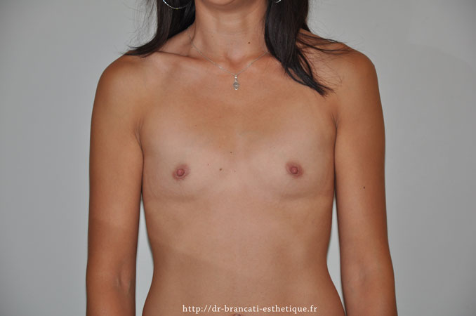 Augmentation des seins par prothèses mammaires