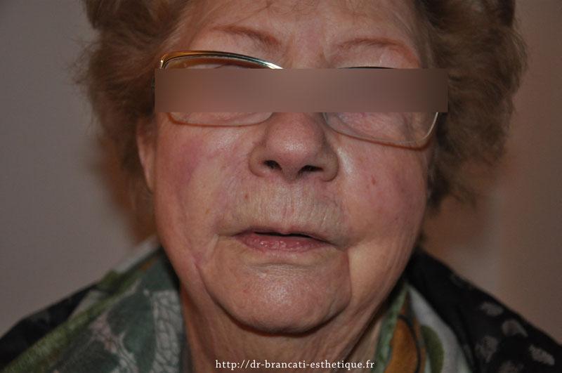 Chirurgie cutanée - vue après intervention chirugicale