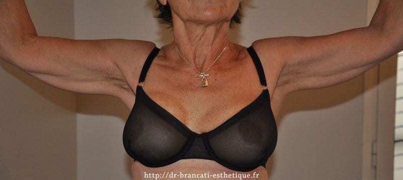 Lifting des bras - avant intervention - vue de face